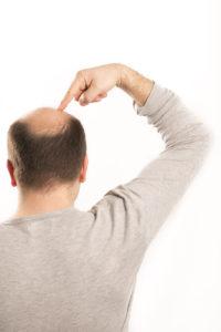 krožno izpadnje las pri moški je običajno