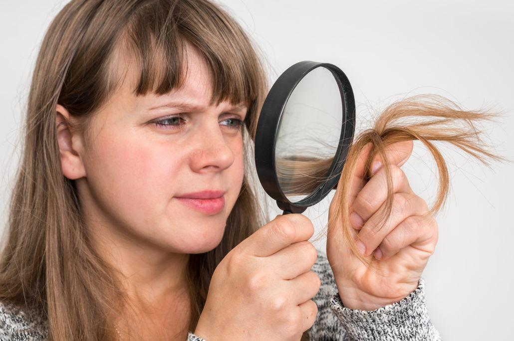vzroki za kronično izpadanje las
